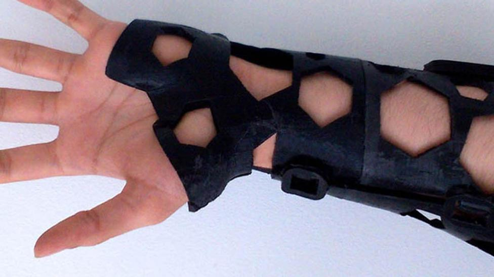 More Comfortable 3D Printed Casts